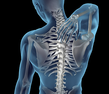 Cervical and Thoracic Epidural | Pain Management San Francisco, Redwood City
